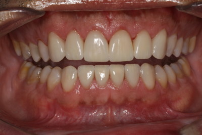 "veneers ""tetracycline staining"""